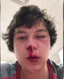 shley Williams Marble photo of son injuries - Wakefield High - WCPSS